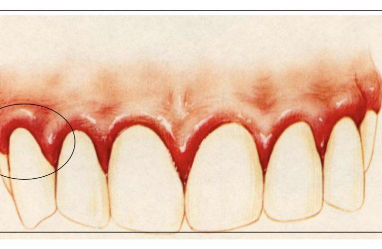 牙周病主要分為2大類
