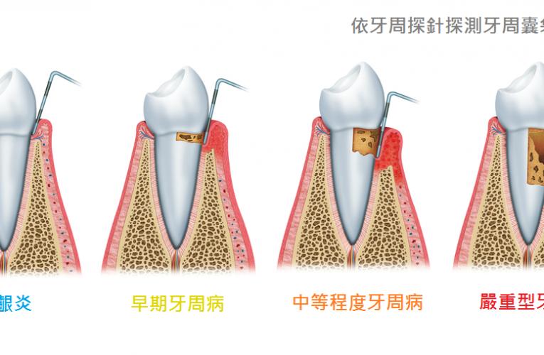 刷牙時,如果發現牙齦紅腫或是流血,有可能是牙周病的前兆