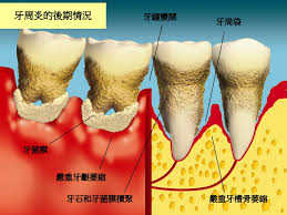 調查發現, 國人蛀牙盛行率接近9成,罹患牙周病的比率甚至高達99.2%,居亞洲之冠