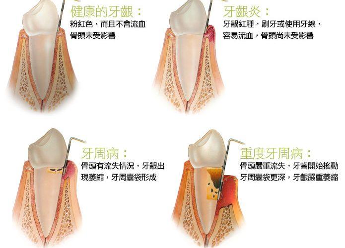 牙齦按摩不難,只要一根手指,不必花大錢,就能輕鬆保健牙齒!