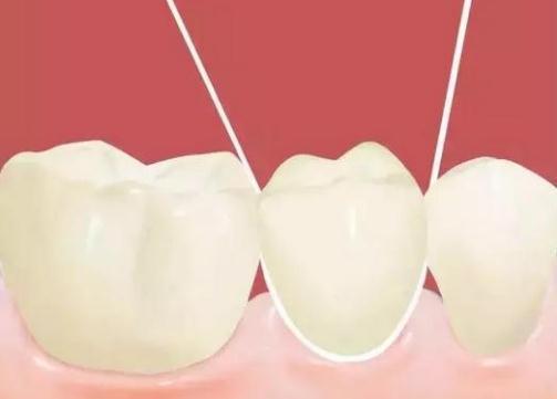 小心! 「8癌變警訊」曝光 牙周病是胰臟癌前兆