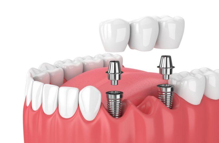 植牙術後保養