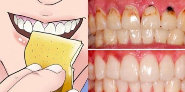 常飲咖啡或茶容易牙黃?牙齒是否愈白愈好?