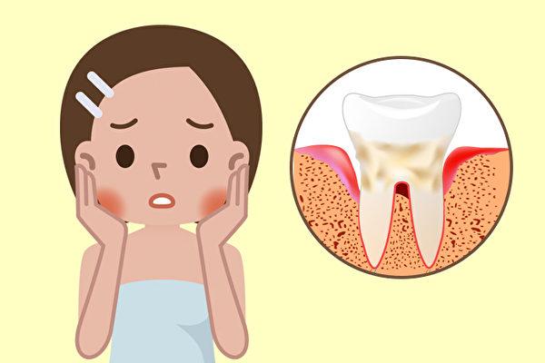 遠離蛀牙、牙周病! 4種食物讓牙齒健康又變白