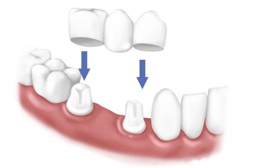 為什麼你的牙齦總是反覆出血?
