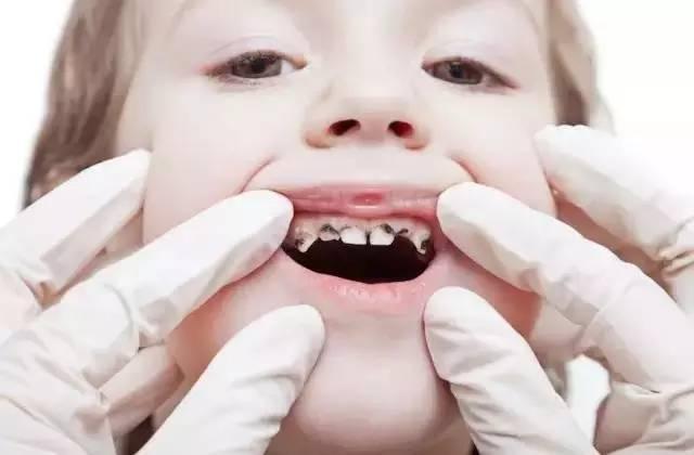 寶寶口腔護理越早越好,可以有效防止蛀牙