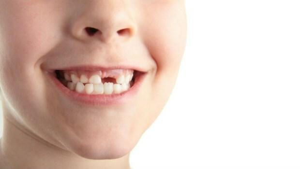 如果孩子乳牙成了齲齒怎麼辦?
