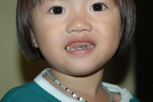 寶寶刷牙注意事項: