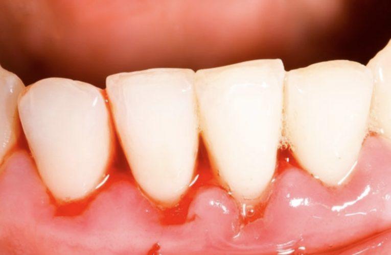 [新聞] 牙齦流血狂補維生素C?營養師警告:恐增結石風險