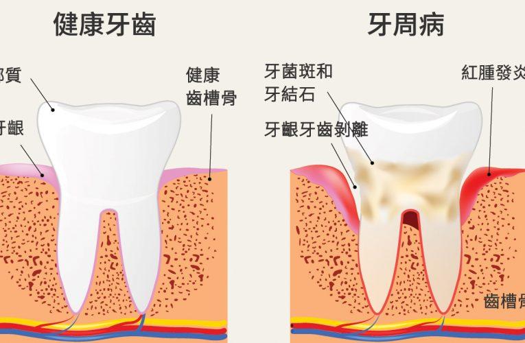 [新聞] 不是洗牙就沒事 牙周病不治療恐慢性疾病上身